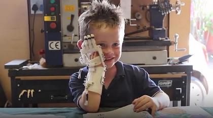 Mão Robótica 3D ajuda crianças sem dedos